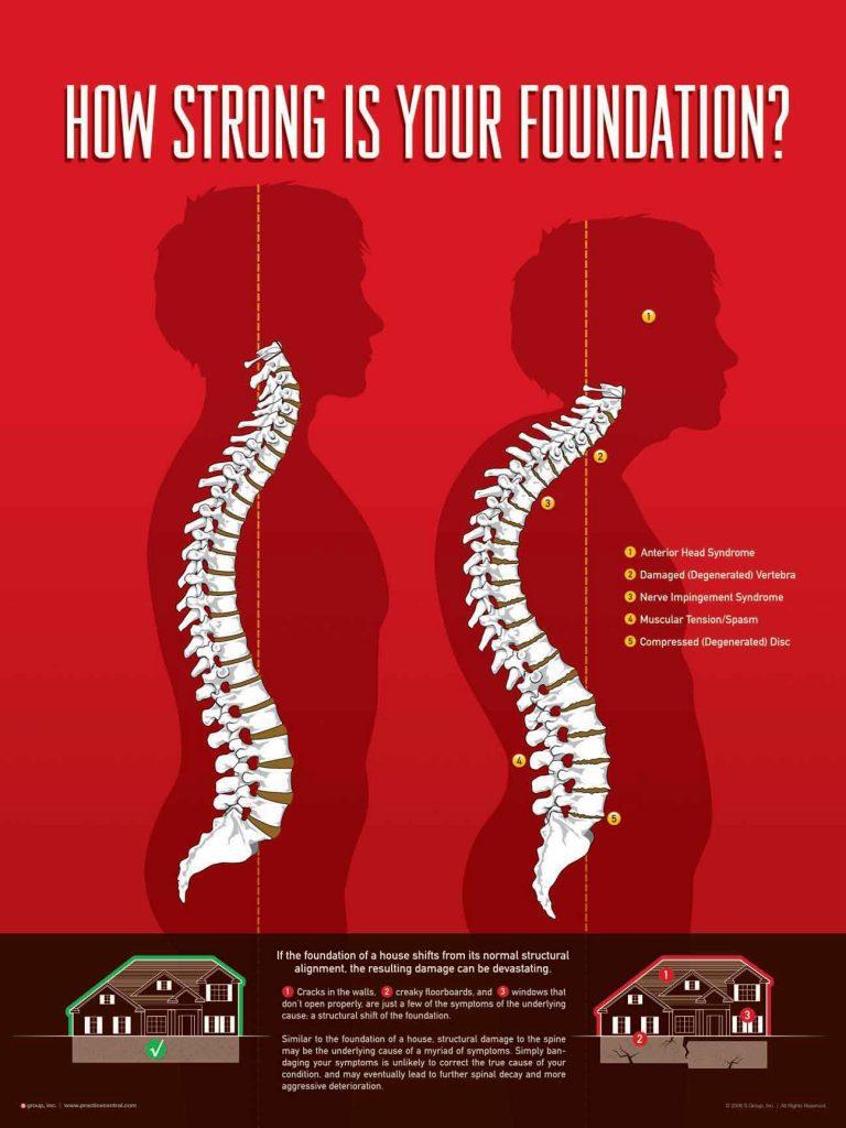 Foundation of health, Keystone Chiropractic, Plano chiropractors